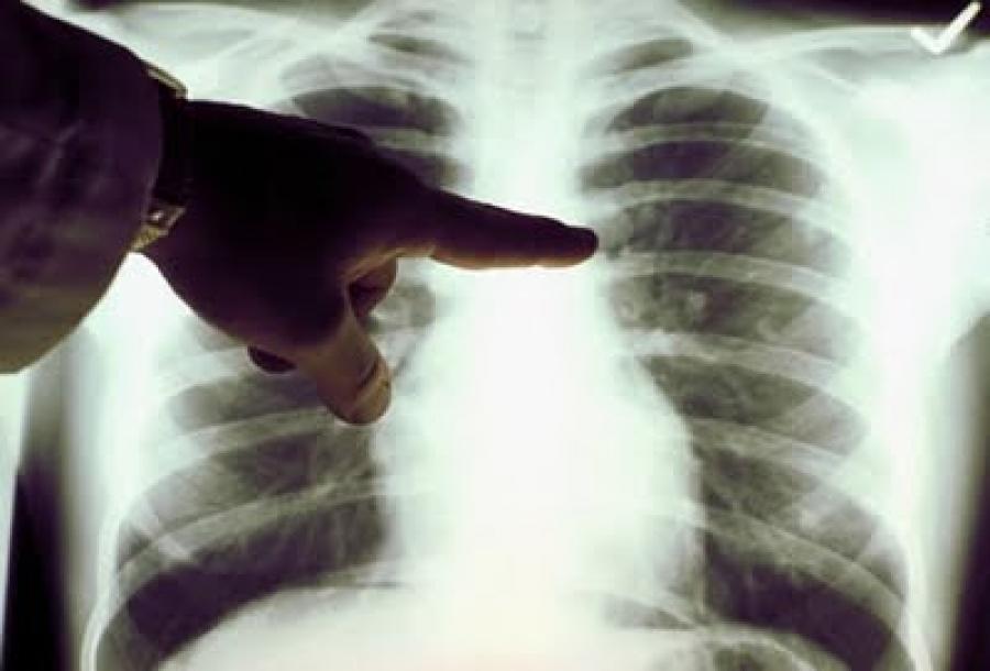 """""""Седмица на отворените врати"""" за превенция на туберкулозата ще се проведе в Добрич"""