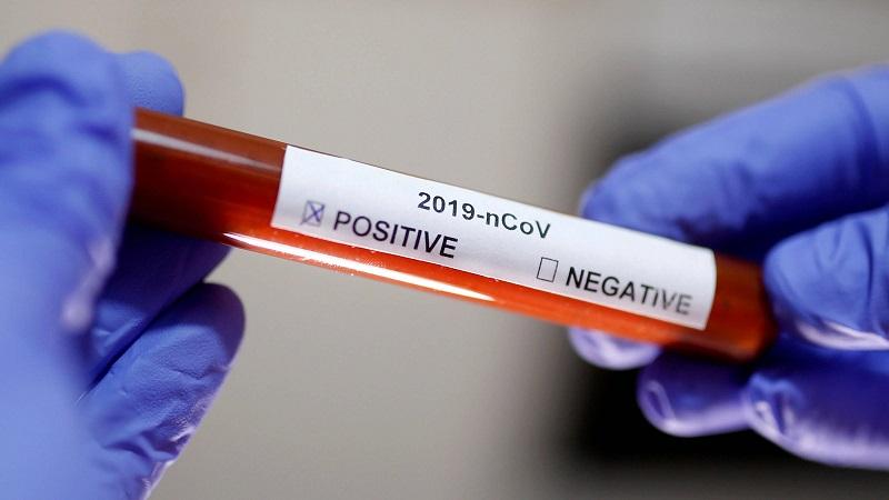 22 нови случая на коронавирус в страната