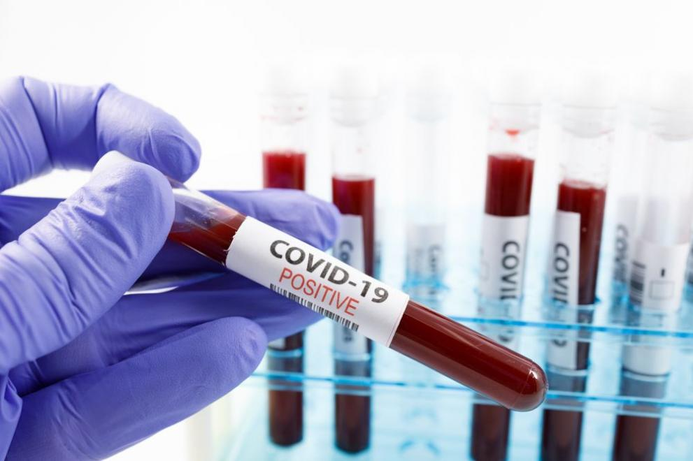 266 са новите случаи на коронавирус у нас