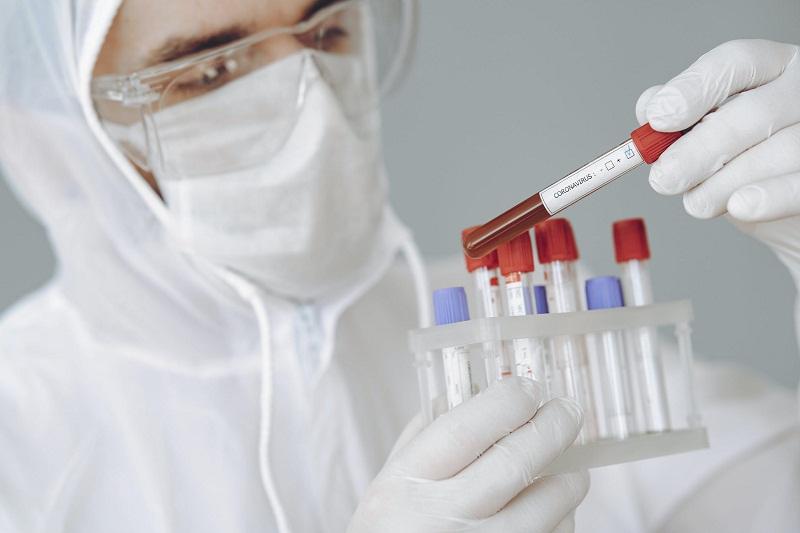 28 са новите случаи на Covid-19 в област Добрич